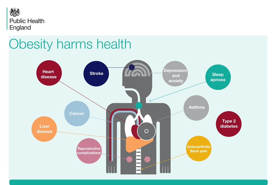 Obesity harms health - Public Health England
